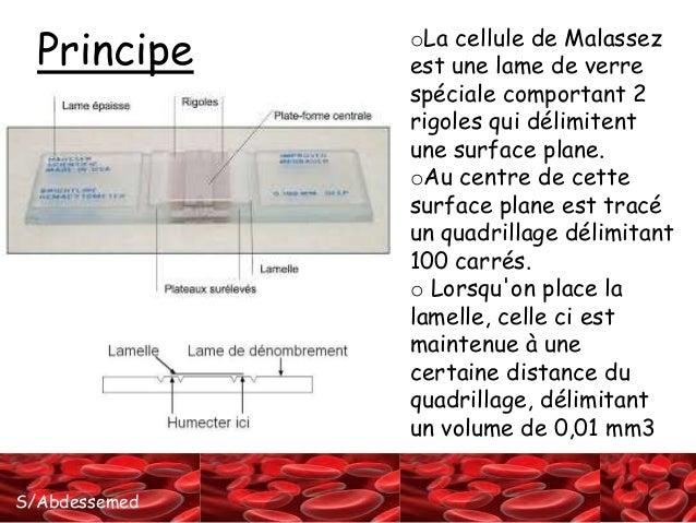 La cellule de malassez Slide 2