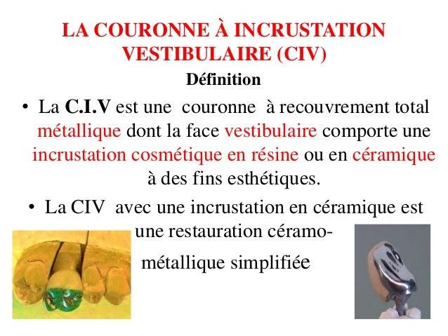 La couronne à incrustation vestibulaire (civ) 3 Slide 2