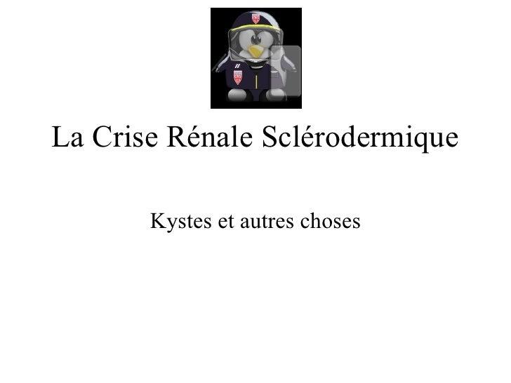La Crise Rénale Sclérodermique Kystes et autres choses