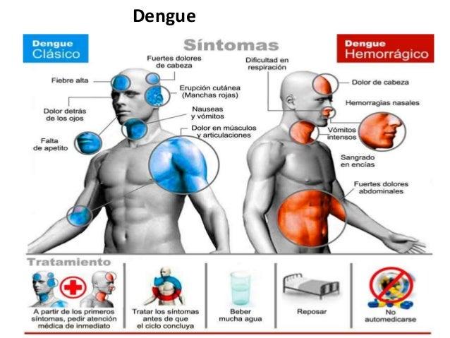 Virus Chikungunya