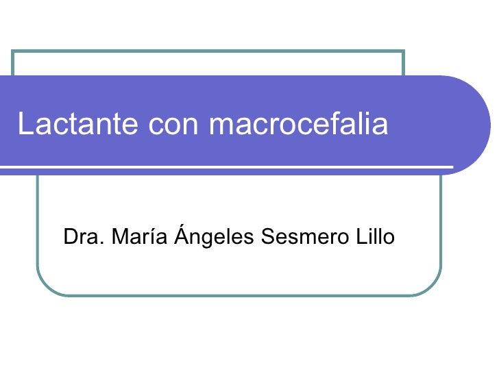 Lactante con macrocefalia Dra. María Ángeles Sesmero Lillo