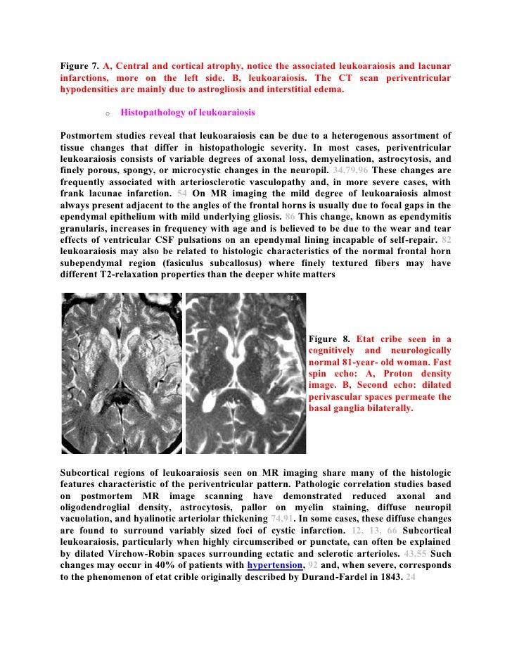 Tolle Grays Anatomie Kanal 7 Zeitgenössisch - Menschliche Anatomie ...