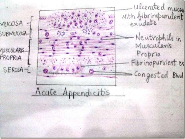 L acute appendicitis