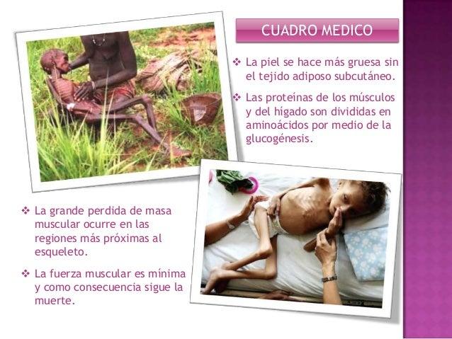 La desnutricion - Cuadro clinico - sintomas y causas