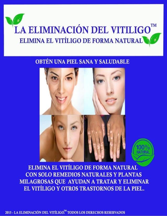 La Eliminación del VitiligoTM