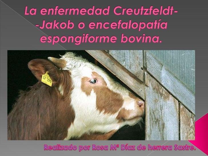  La enfermedad de  Creutzfeldt-Jakob (ECJ) es  una enfermedad cerebral  mortal y poco frecuente. En un principio, se cre...