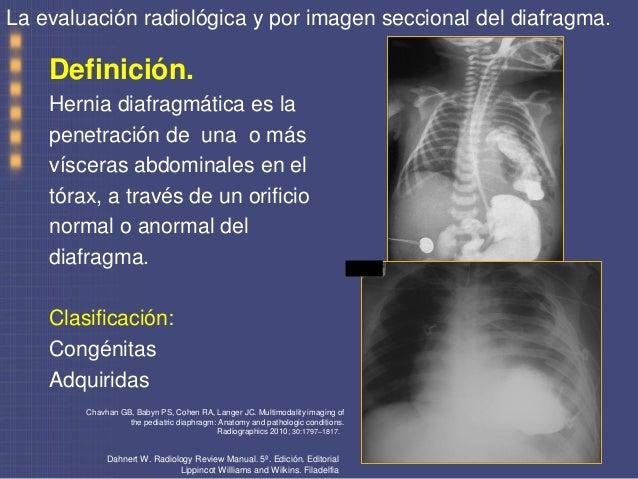 La evaluacion radiologica y por imagen seccional del diafragma