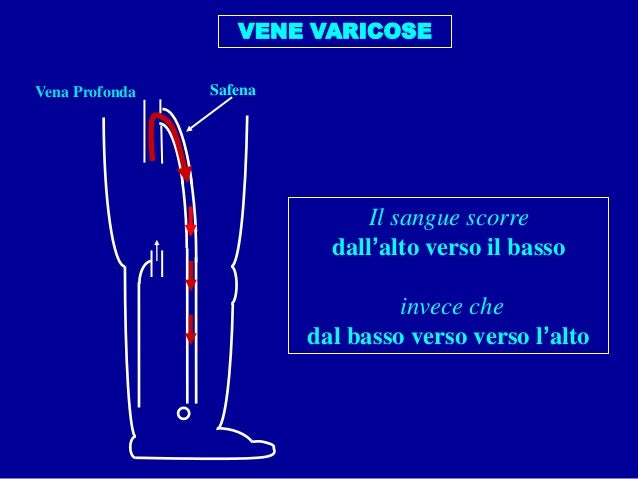 Laser per coagulazione endovenous