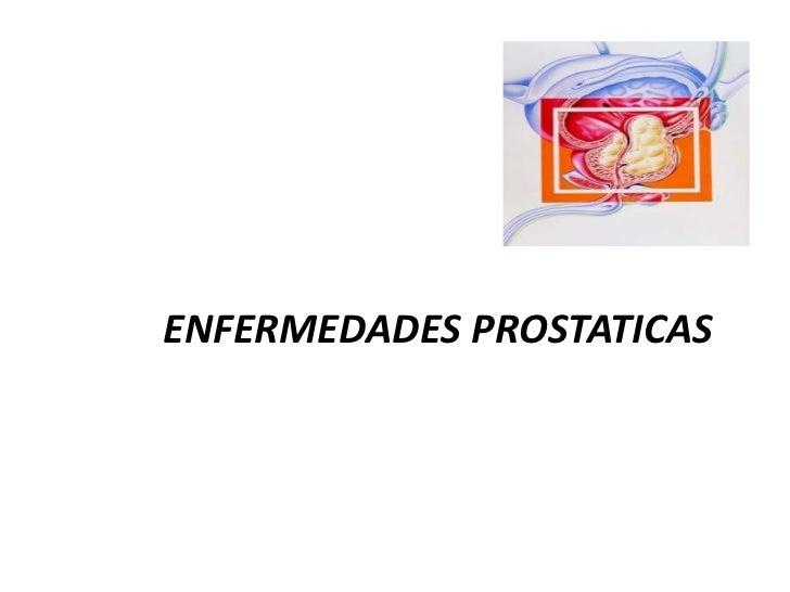 ENFERMEDADES PROSTATICAS