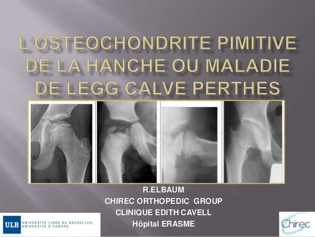 R.ELBAUM CHIREC ORTHOPEDIC GROUP CLINIQUE EDITH CAVELL Hôpital ERASME
