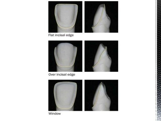 Dental Veneers Amp Laminates