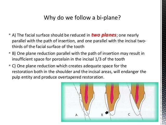 Dental Veneers & Laminates