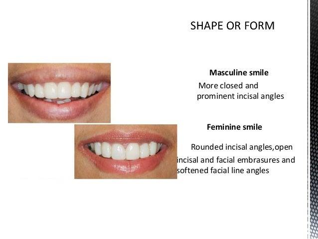 Dental Veneers Laminates