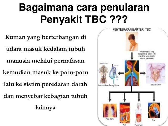 Image Result For Penyakit Tbc