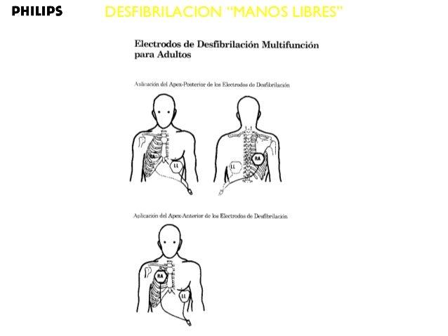Seminario sobre Bioingeniería: La muerte súbita