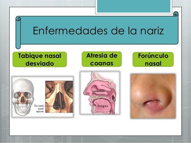 La Nariz Antom 237 A Fisiolog 237 A Enfermedades