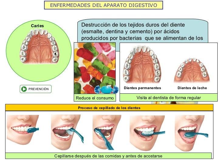 ENFERMEDADES DEL APARATO DIGESTIVO Caries Cepillarse después de las comidas y antes de acostarse Reduce el consumo Visita ...