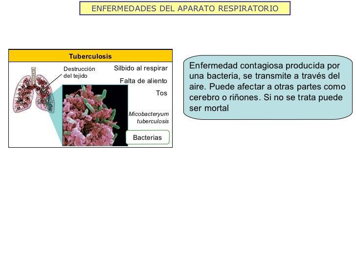 ENFERMEDADES DEL APARATO RESPIRATORIO Tuberculosis Silbido al respirar Falta de aliento Tos Bacterias Micobacteryum tuberc...