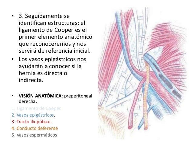 Laparoscopica hernia inguinal ppt.....