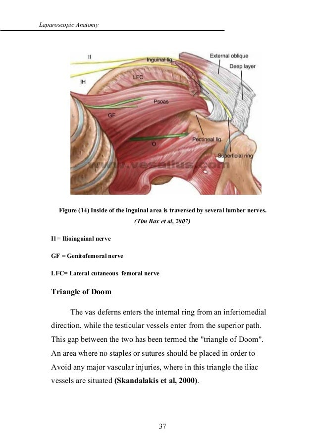 Laparoscopic anatomy of inguinal canal