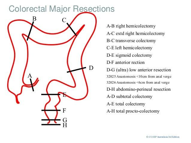 Right hemicolectomy anatomy