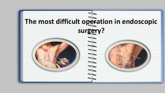 Laparoscopic surgery. Intro. History of Armata manus