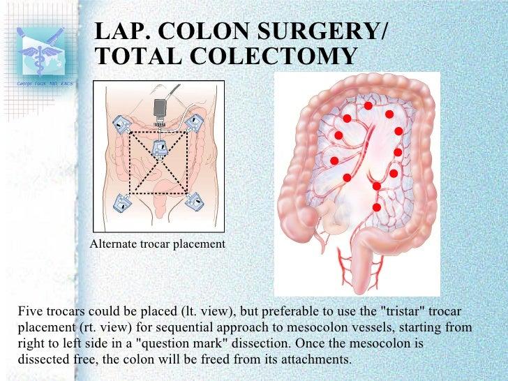 Laparoscopic Trocar Placement