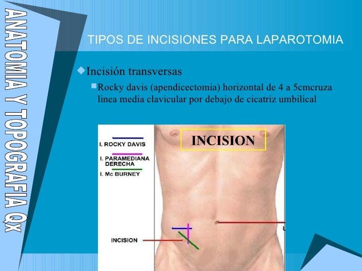 Laparotomía y laparoscopia