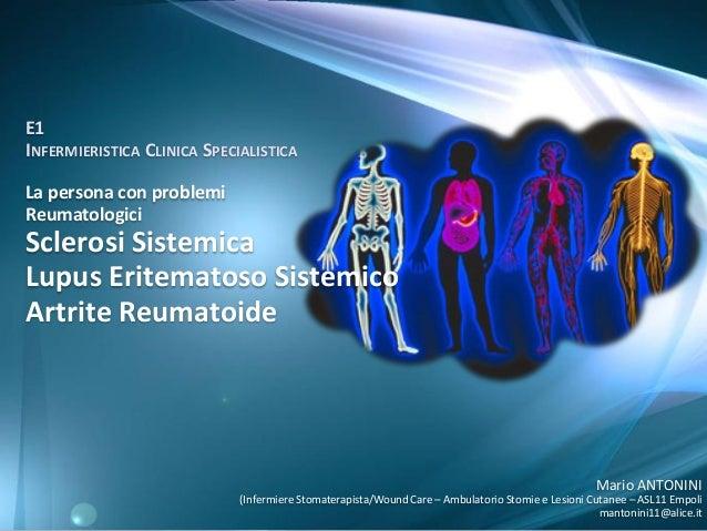E1 INFERMIERISTICA CLINICA SPECIALISTICA La persona con problemi Reumatologici  Sclerosi Sistemica Lupus Eritematoso Siste...