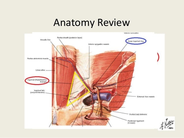 Anatomy Review For Laparoscopic Inguinal Hernia Repair - Daily ...