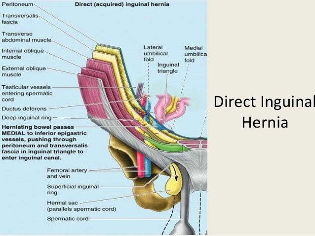 Inguinal hernia repair anatomy