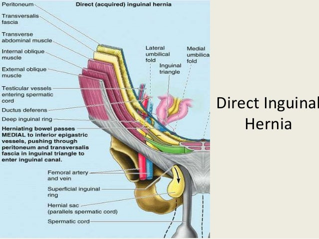 Laparoscopic Inguinal Hernia Repair Tapp
