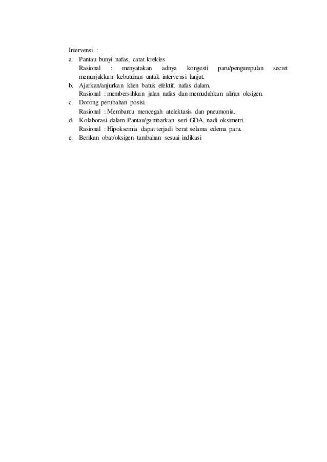 Agen Distributor yang Jual Produk Herbalife di Surabaya (WA : 0813-5355-6575)