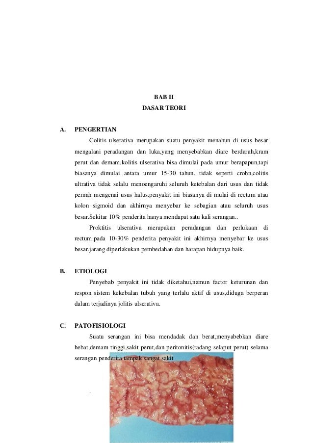 Ulser kolitis: Komplikasi rawatan - Rawatan