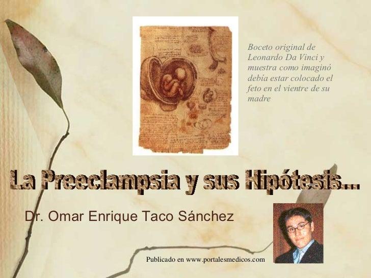 Dr. Omar Enrique Taco Sánchez Boceto original de Leonardo Da Vinci y muestra como imaginó debía estar colocado el feto en ...