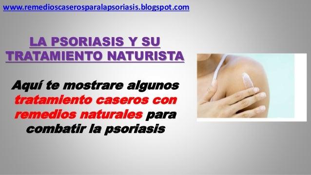 La psoriasis y su tratamiento naturista