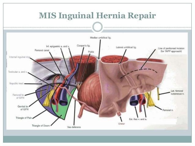 Hernia Repair | PkHowto