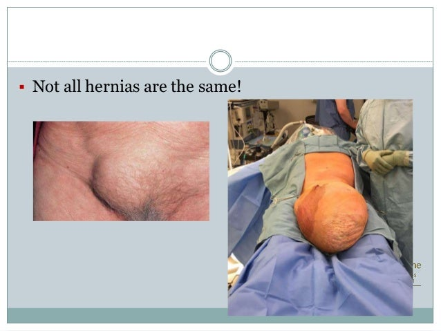 Laparoscopic vs Open Inguinal Hernia repair