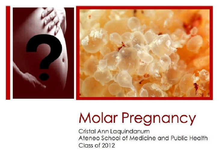 Molar Pregnancy, What Is It?