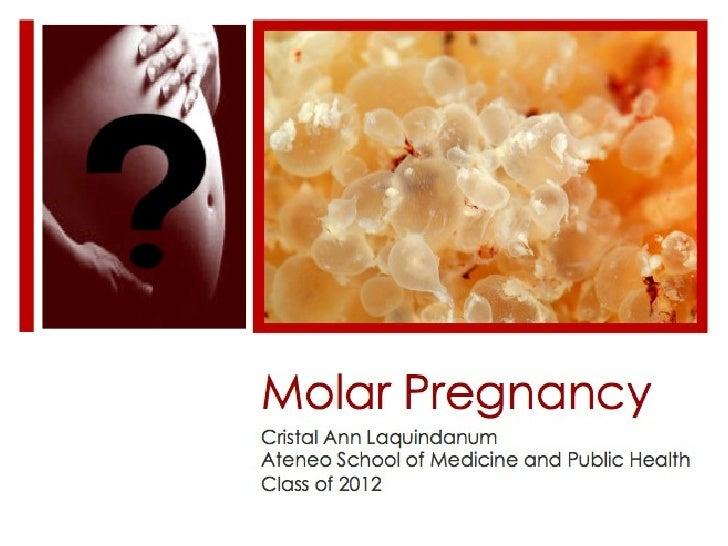 Molar Pregnancy Cristal Ann Laquindanum Ateneo School of Medicine and Public Health Class of 2012