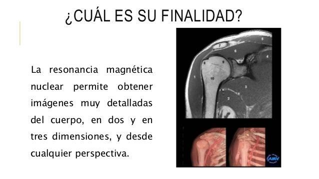 ¿CUÁL ES SU FINALIDAD? La resonancia magnética nuclear permite obtener imágenes muy detalladas del cuerpo, en dos y en tre...