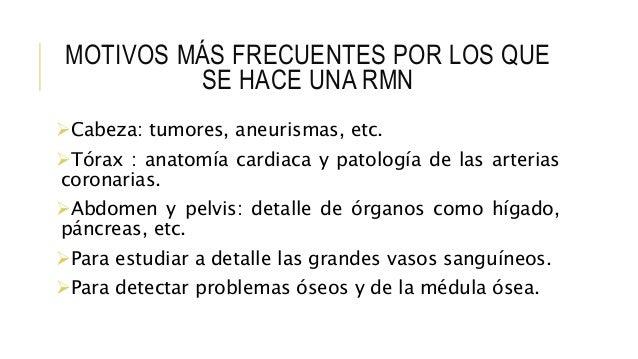 MOTIVOS MÁS FRECUENTES POR LOS QUE SE HACE UNA RMN Cabeza: tumores, aneurismas, etc. Tórax : anatomía cardiaca y patolog...