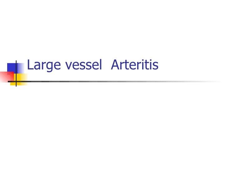 Large vessel  Arteritis