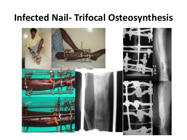 osteosynthesis material removal Necessity of future material removal prior to clinical introduction, biomechanical stability of the osteosynthesis of diacapitular condylar process fractures of.
