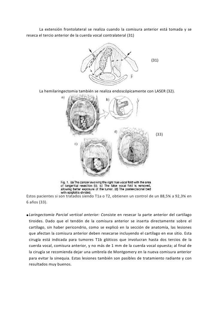 Laringectomias parciales en cancer glotico