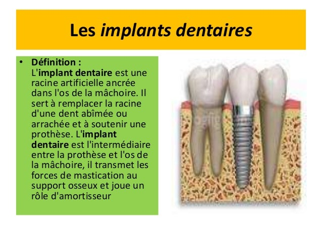 hygiene dentaire definition