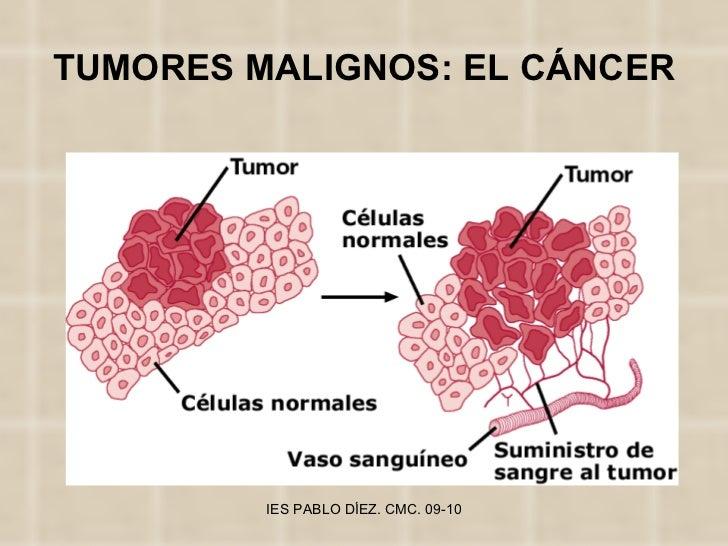 TUMORES MALIGNOS: EL CÁNCER