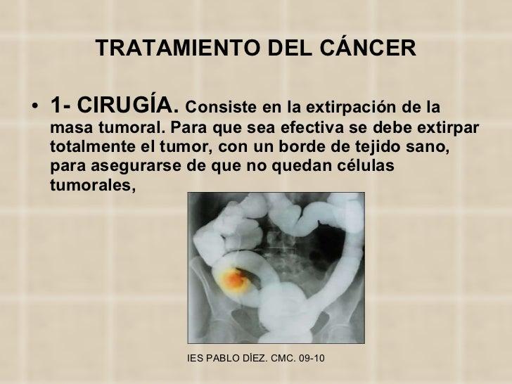 TRATAMIENTO DEL CÁNCER <ul><li>1- CIRUGÍA.  Consiste en la extirpación de la masa tumoral. Para que sea efectiva se debe e...