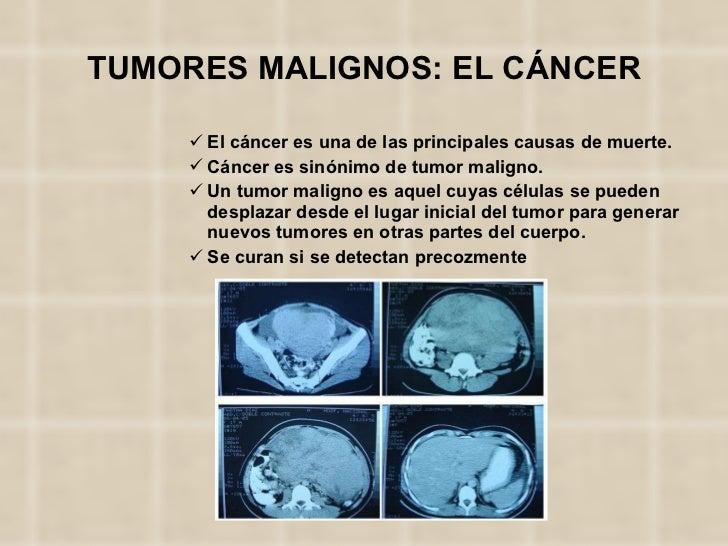 TUMORES MALIGNOS: EL CÁNCER <ul><ul><ul><ul><ul><li>El cáncer es una de las principales causas de muerte. </li></ul></ul><...