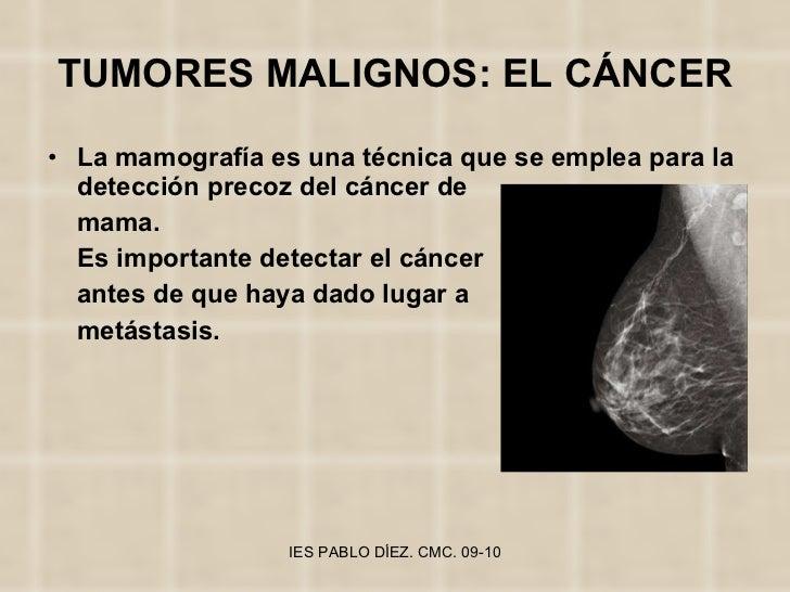 TUMORES MALIGNOS: EL CÁNCER <ul><li>La mamografía es una técnica que se emplea para la detección precoz del cáncer de </li...